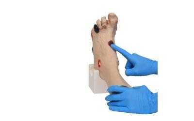 Wilma's verwonde voet