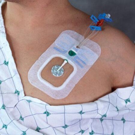 Biopatch antimicrobiele schijfjes voor bij CVC/PICC per 40 st.